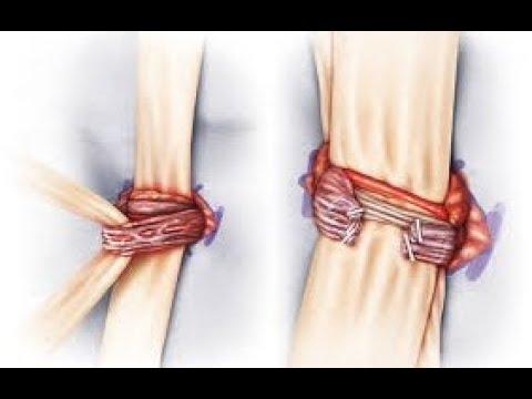Μικροχειρουργική αποκατάσταση κιρσοκήλης