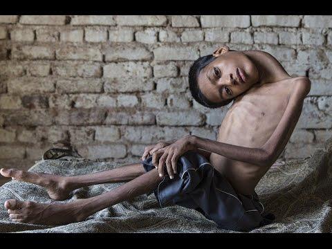 Indian boy has congenital myopathy whose head hung at 180 degree angle has life changing surgery