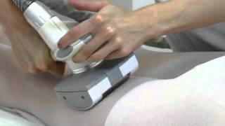 вакуумно-роликовый массаж LPG Пенза. Доктор Борменаль