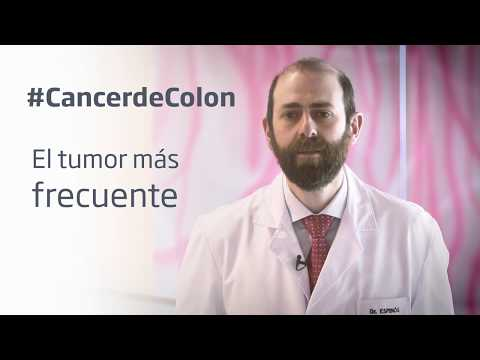 Alimentos prohibidos en cancer de colon