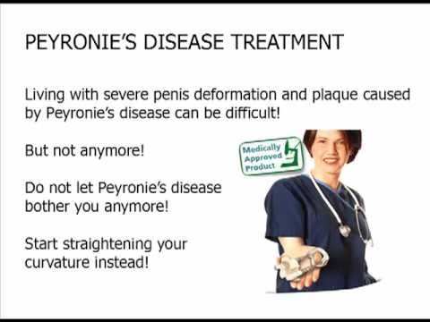Peyronies viagra