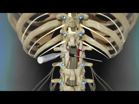 Back Surgery Posterior Lumbar Fusion