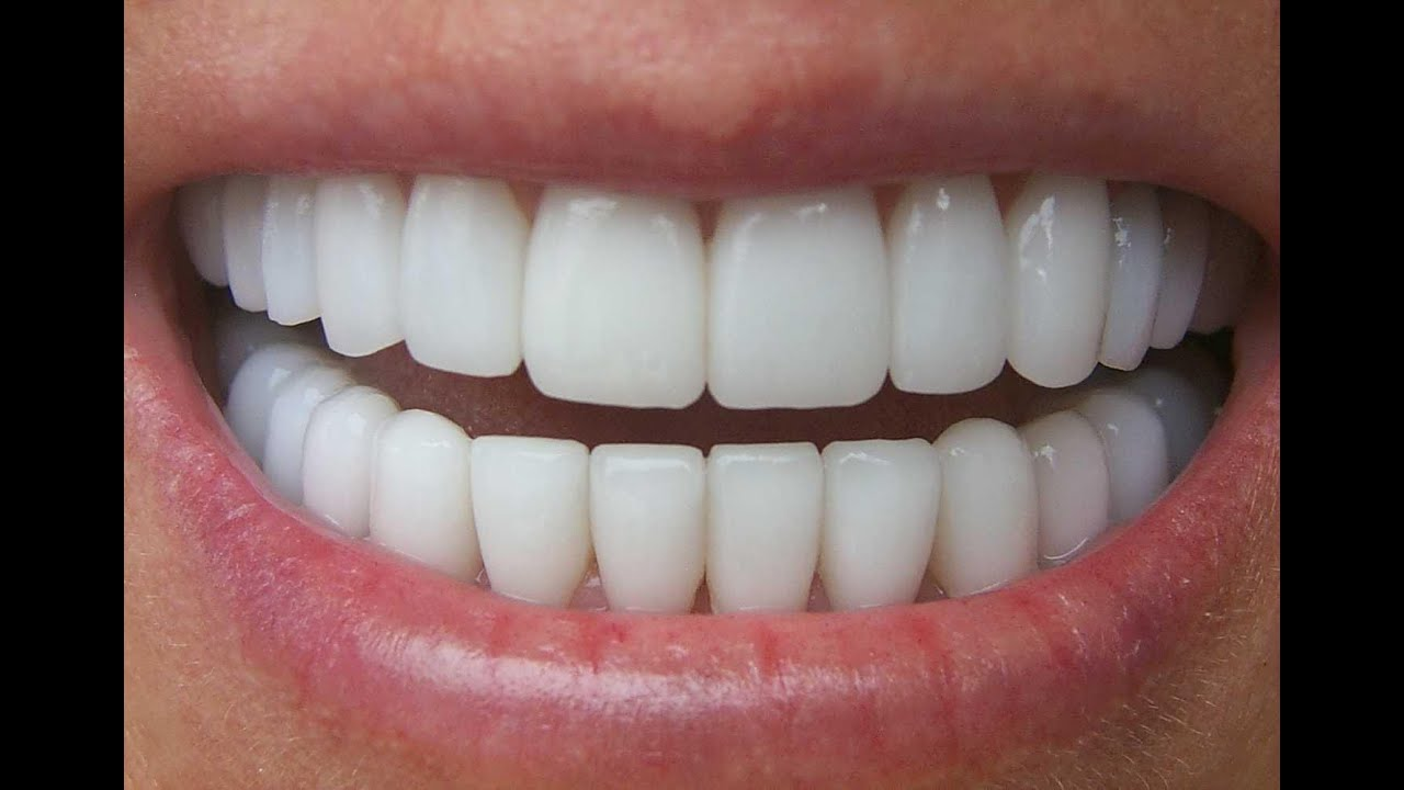 Get straight teeth at home - How To Whiten Teeth At Home Simply Achieve Sparkling White Teeth From Home