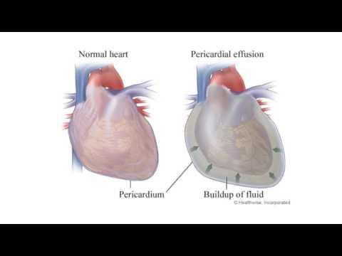 Diseases of the Pericardium