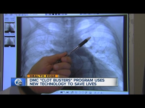 New technology for clot busting
