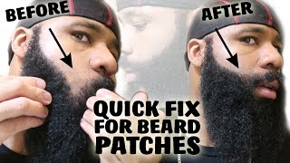Quick Fix For A Patchy Beard | Growing A Thick Mustache For No Shave November