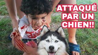 IL SE FAIT MORDRE PAR UN CHIEN DANGEREUX AU PARC: ÇA TOURNE MAL!!!