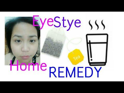 Stye Eye Home Remedy L Mabisang Gamot Sa Kuliti Sa Mata