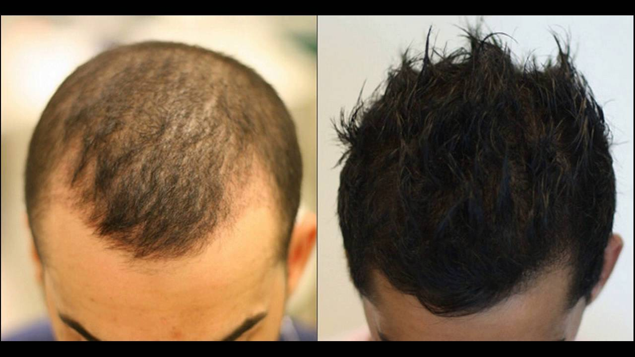 Platelet Rich Plasma Therapy For Hair Loss Treatment Youtube