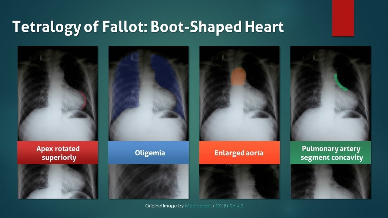 tetralogy of fallot  boot shaped heart