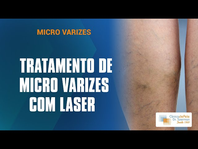 Micro-Varizes com Laser Nd:Yag | Calor controlado e progressivo
