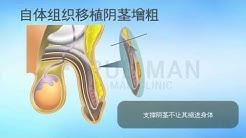 替代真皮阴茎增粗-男性手术专科医院TRUEMAN