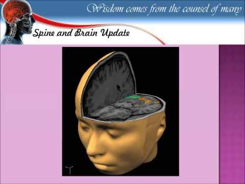 How to read MRI of the Brain Hussien El Maghraby