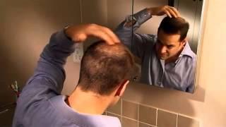 Hair Thickening Product Demo  Nanogen Keratin Hair Fibres