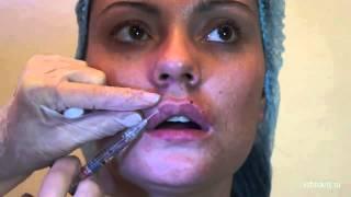 Увеличение губ #10(Увеличение губ (моделирование губ) осуществляется путем инъекций в губы гелей (филеров), на основе стабилиз..., 2014-02-24T06:08:35.000Z)