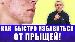 КАК БЫСТРО ИЗБАВИТЬСЯ ОТ ПРЫЩЕЙ Чистая кожа ФОРУМ