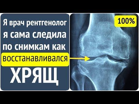 Восстановится ли хрящ после 60? Отвечает врач рентгенолог!