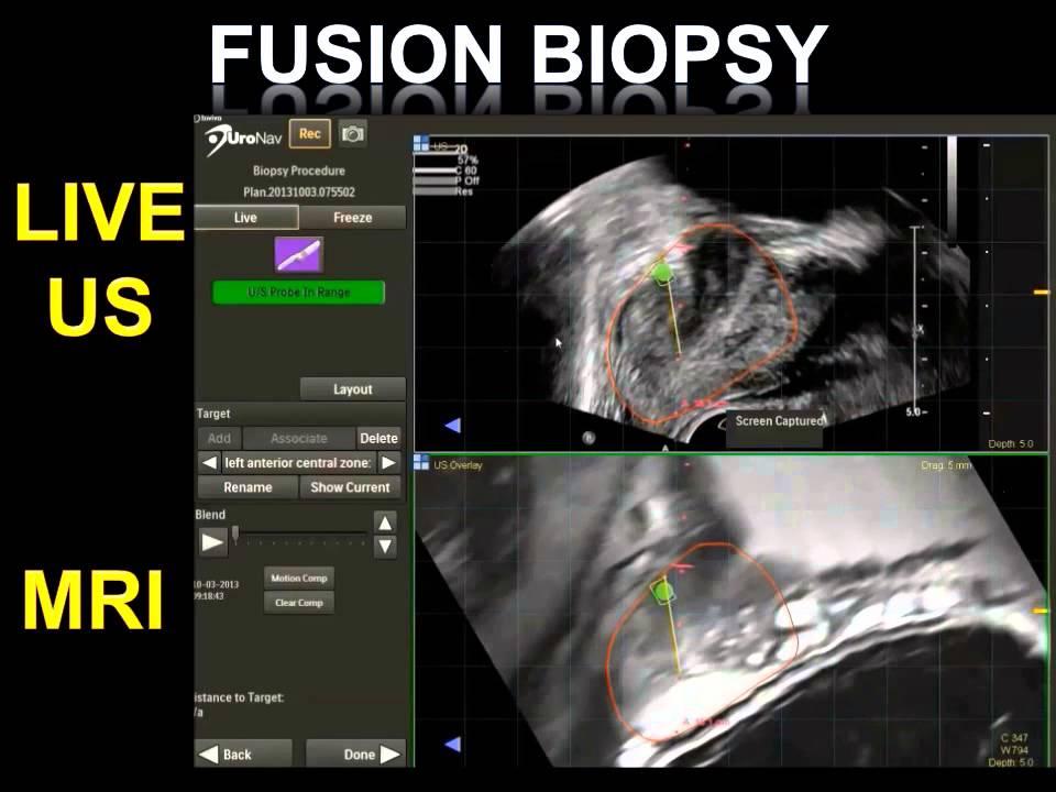fusión de próstata bxg