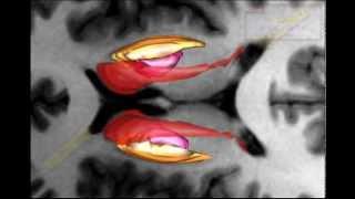 3D Brain from MRI   5   Lentiform nucleus and internal capsule