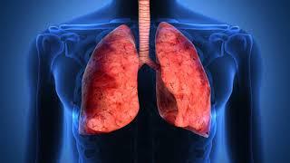 видео Сколько лечится пневмония у взрослых: дома и в стационаре