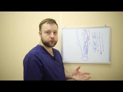 Хирургия, понятная всем - варикозная болезнь