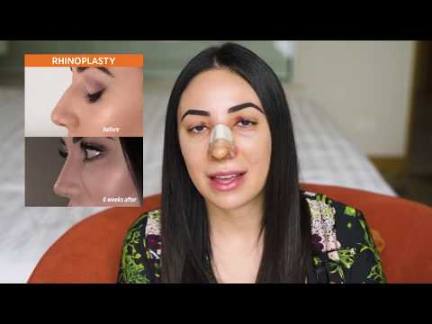 Christina Shares her Pre & Post Rhinoplasty Experience in Ba