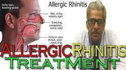 Allergic Rhinitis in Hindi - Discussion and Treatment in Homeopathy by Dr P.S. Tiwari