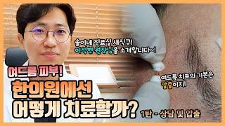 [솔이네진료실] 여드름 피부! 한의원에선 어떻게 치료할…