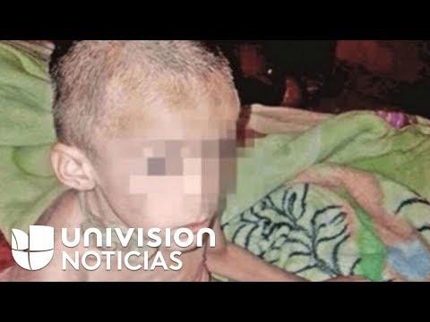 El niño maltratado en México se reencuentra con su padre tras 48 días de su rescate