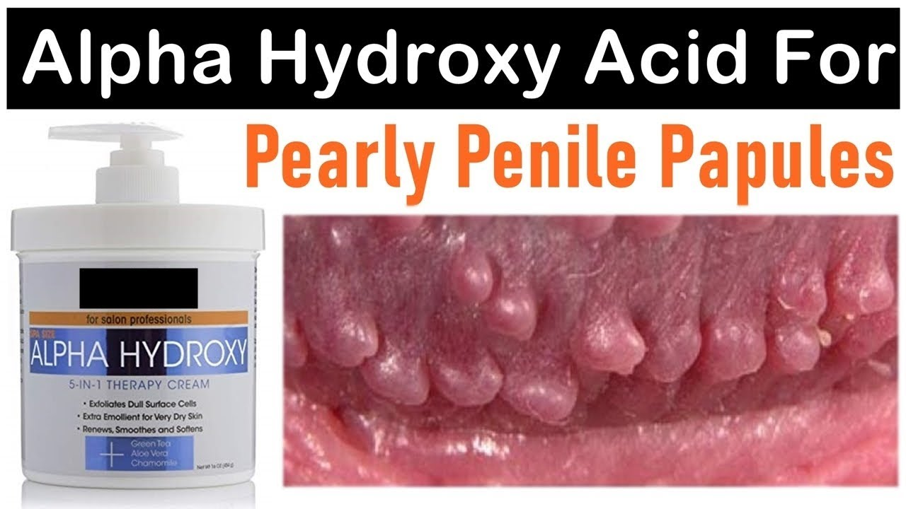 Papules pearly treatment cost penile Pearly Penile