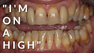 Ellie's Smile Makeover Experience | Travel Dentistry