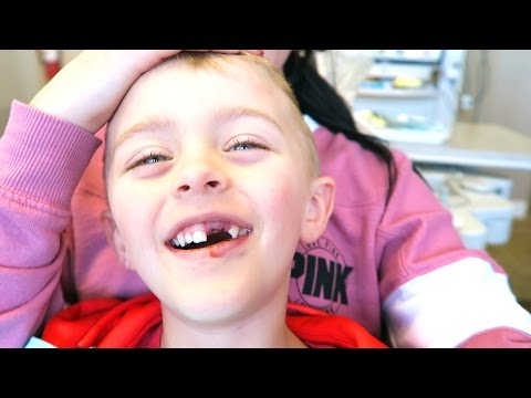 Thumbnail: HE KNOCKED HIS TEETH OUT!!