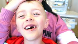 HE KNOCKED HIS TEETH OUT!!