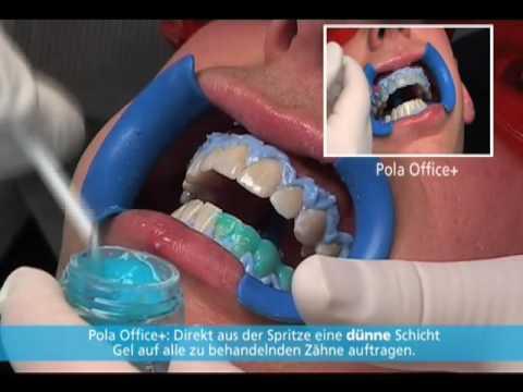 SDI Pola Professional Zahnaufhellungssystem Anwendervideo