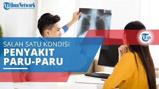 Penatalaksanaan fisioterapi  pada kasus penyakit paru obstruksi kronik (PPOK) MIDA WATI_1803068.