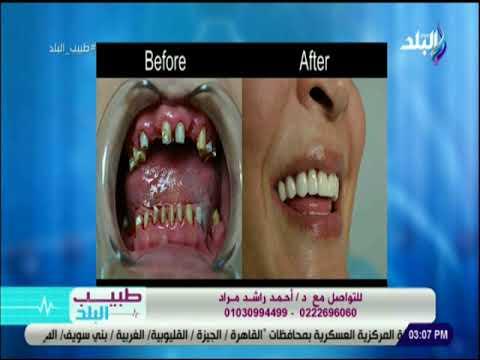 طبيب البلد - ودع مشاكل سنانك واستمتع بابتسامة هوليود - د. أحمد مراد thumbnail