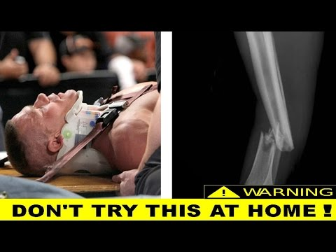 Top 10 Serious Injuries In Wwe-10 Most Horrifying Wrestling Injuries Of All Time
