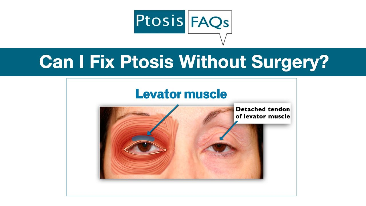 Can I Fix Ptosis Without Surgery? - YouTube