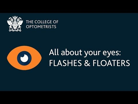 Flashes and floaters in the eye / Look After Your Eyes