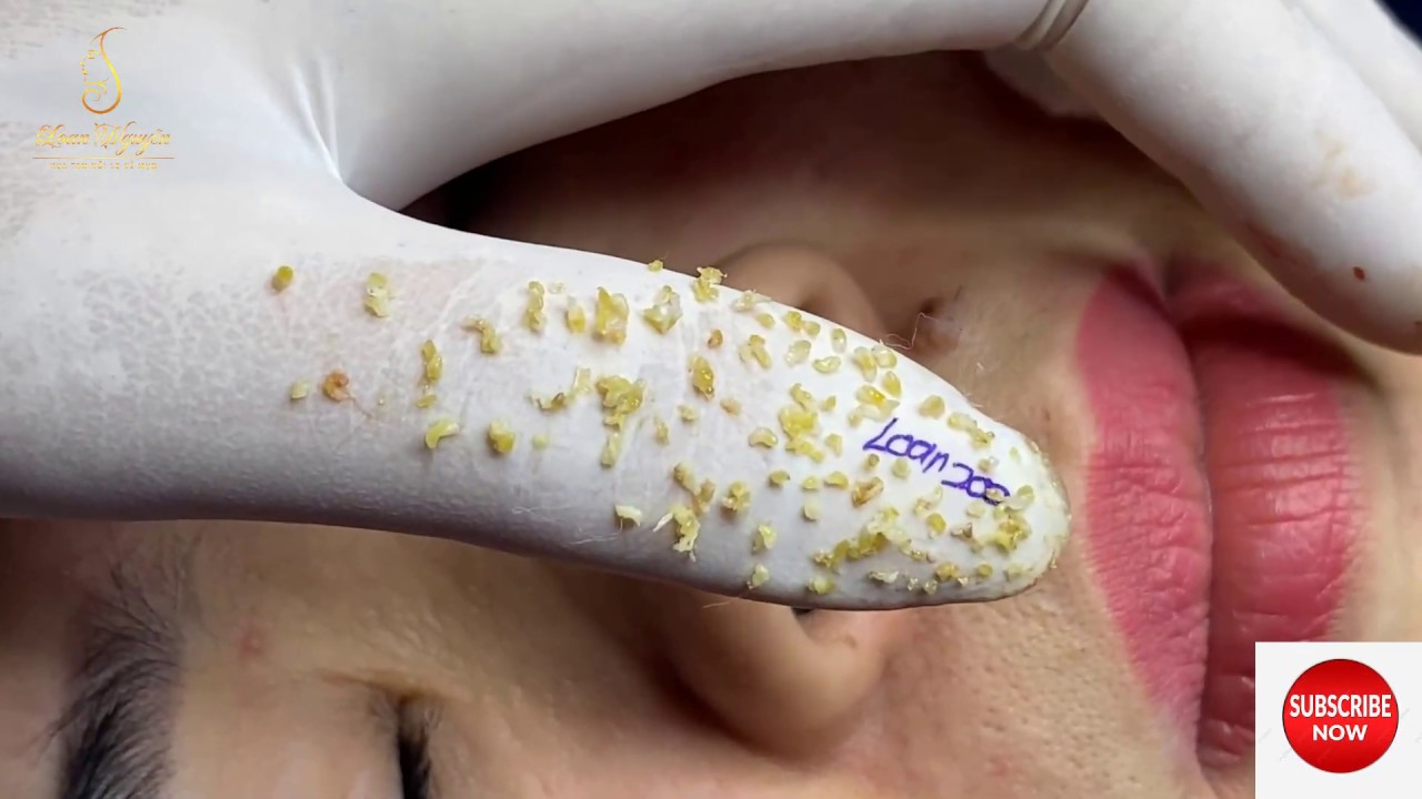 Blackheads And Whiteheads Extraction On The Face 200 Loan Nguyen Youtube