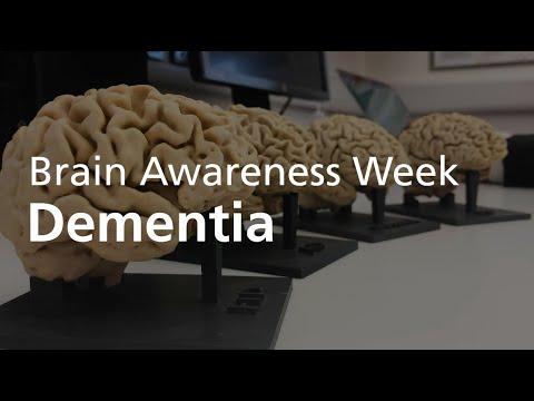 Brain Awareness Week 2020 | Professor James Rowe On Dementia