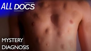 The Man With Hundreds of Lumps - Lipomas | Medical Documentary | Reel Truth