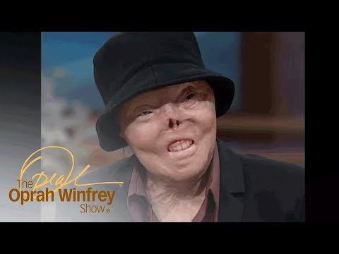 The Woman Who Was Burned Alive By A Drunk Driver | The Oprah Winfrey Show | Oprah Winfrey Network