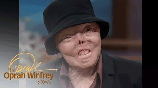 Download The Woman Who Was Burned Alive By A Drunk Driver | The Oprah Winfrey Show | Oprah Winfrey Network Mp3 and Videos
