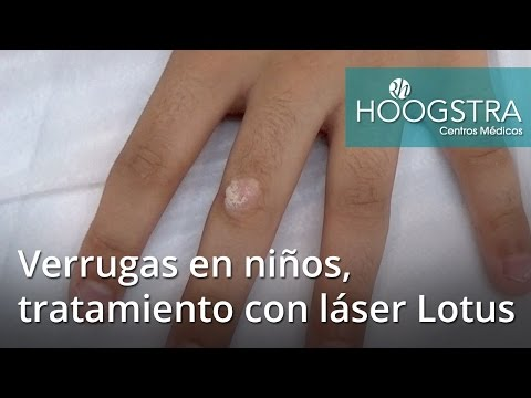 Verrugas en niños, tratamiento con láser Lotus (16039)
