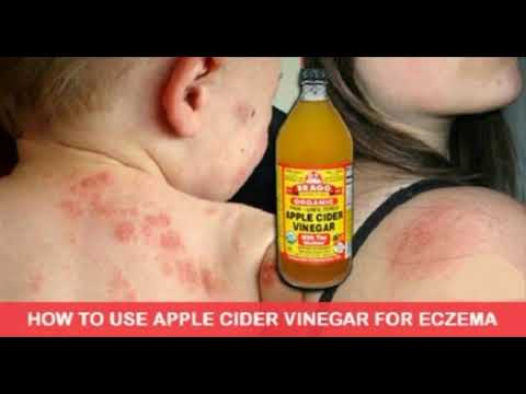 THESE ACV REMEDIES CAN HELP YOU FIGHT ECZEMA WITHOUT USING ANY PHARMACEUTICAL DRUGS AND OINTMENTS!