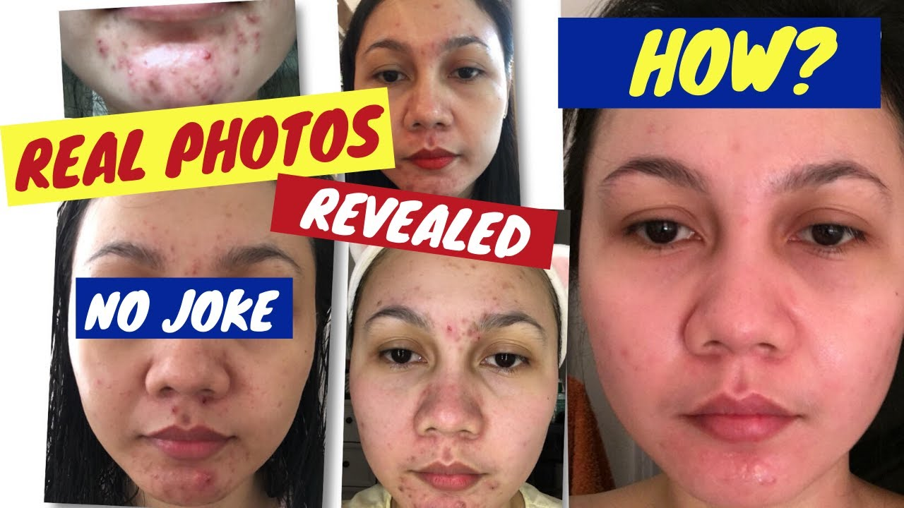 how to get rid of hormonal cystic acne