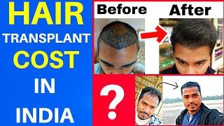 Hair Transplant Cost In India | Hair Transplant me kitna  kharcha aata hai