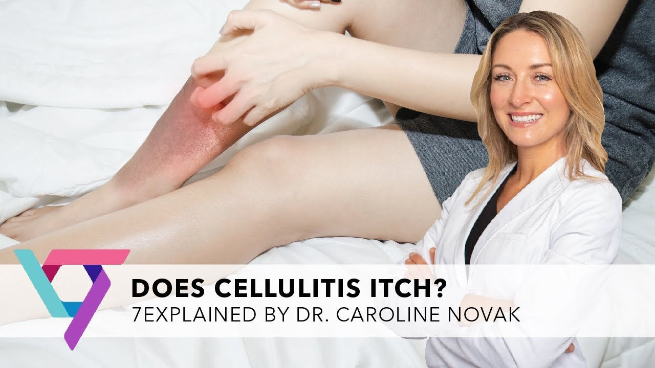 Medical Clinic: Does Cellulitis Itch | Spider & Varicose Vein Treatment Center New York 10017