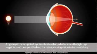 Mi vezethet a rövidlátáshoz, Tudnivalók a miópiáról, azaz a rövidlátásról I CooperVision